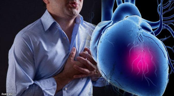 Mengapa Terlalu Banyak Duduk Meningkatkan Risiko Serangan Jantung?